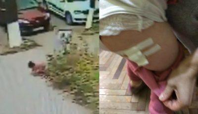 Un copil de 2 ani, atacat și rănit de maidanezi pe o stradă din Capitală