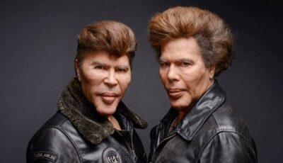 Doi frați artistocrați, mutilați din cauza obsesiei pentru chirurgia estetică. Cum arătau înainte de intervențiile estetice nereușite?