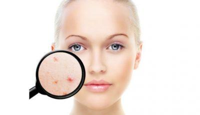 Un singur remediu cu trei efecte pentru tenul gras și acneic: matifiant, antibacterian și seboreglator