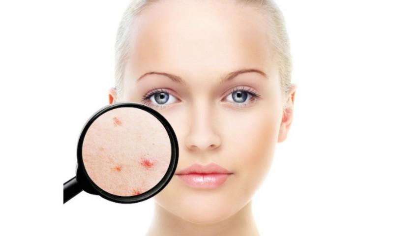 Foto: Un singur remediu cu trei efecte pentru tenul gras și acneic: matifiant, antibacterian și seboreglator