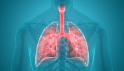 Pneumonia: 6 modalități de prevenire a acestei boli cu risc înalt de mortalitate