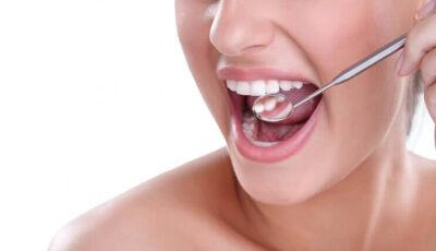 Beneficiile irigatorului bucal Water Dent pentru igiena oro-dentală