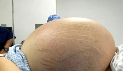 O femeie a ajuns la spital cu o tumoare uriașă, după ce a evitat să meargă la medic din cauza pandemiei de Covid-19