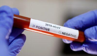 Cele 5 mari necunoscute despre Coronavirus, la un an de la apariția infecției