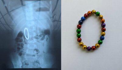 Un copil din Capitală, salvat de medici după ce a înghițit o jucărie cu bile magnetice