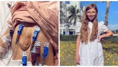Cum arată la 11 ani fetiţa care trăieşte cu inima în afara pieptului. Medicii nu i-au dat nicio şansă, dar ea a crescut și a devenit un copil normal
