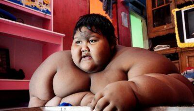 Cum arată cel mai gras băiețel din lume, după ce a slăbit peste 100 de kilograme