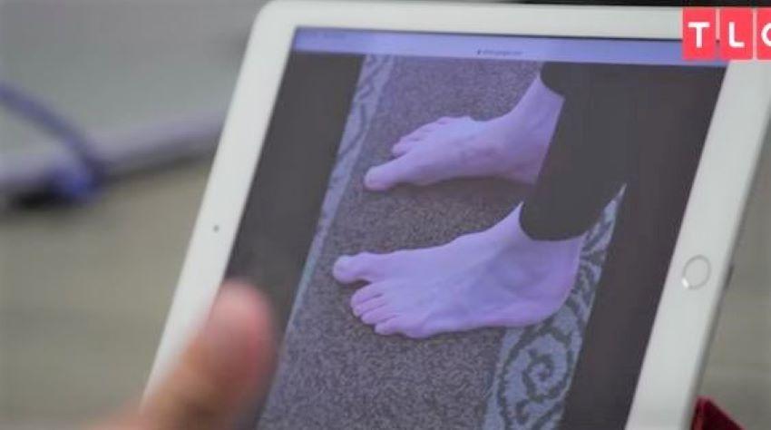 Foto: O femeie cu degetele de la picioare anormal de lungi a ajuns în atenția medicilor