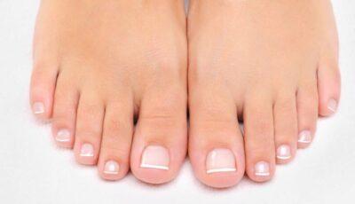 Micoza unghiilor sau onicomicoza: cum o tratăm?