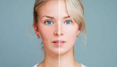 Roșeața tenului, cuperoza, rozaceea: cum să îngrijești corect pielea cu probleme