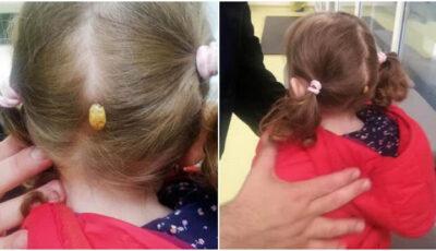 Ce i-a apărut unei fetițe în spatele capului, după ce s-a jucat într-un parc