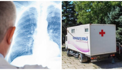 Screening prin radiografie pulmonară: echipa radiologică mobilă se va deplasa în mai multe localități din țară pentru a testa persoanele din grupele de risc sporit pentru cancer și tuberculoză