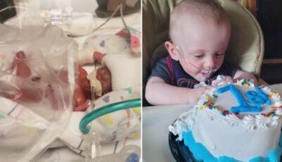 Copilul care s-a născut de 337 de grame și-a sărbătorit prima zi de naștere