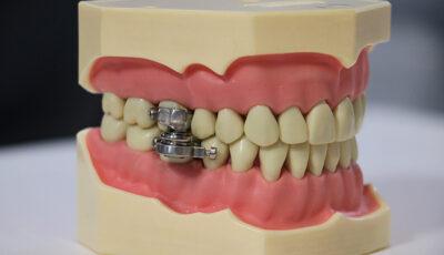 Dispozitivul care blochează gura inventat pentru cure de slăbire, în Noua Zeelandă