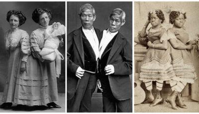 Gemenii siamezi care au uimit omenirea: unii au devenit celebri și bogați, alții   au născut copii încercând să ducă o viață normală