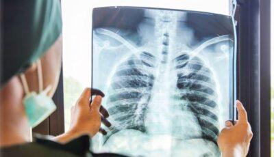 Cum arată plămânii unui bolnav de Covid imunizat și ai unei persoane nevaccinate