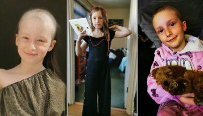 O fetiţă de 8 ani, aproape cheală după ce şi-a smuls tot părul din cap din cauza stresului provocat de pandemie