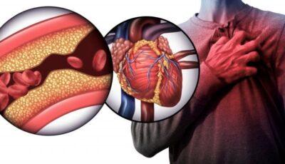 Alți factori care pot crește colesterolul înafară de dietă