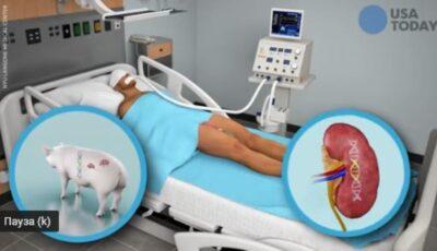 Premieră. Un rinichi de porc a fost transplantat cu succes la om. Organul elimină urină